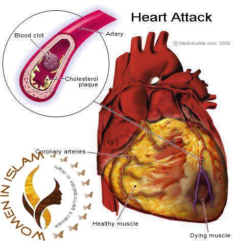Gastritis Heart Attack